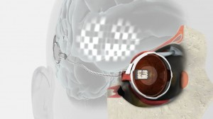 Implantat fuer Sehbehinderte und Blinde