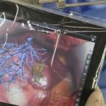 Tablet-PC hilft bei Leberoperationen